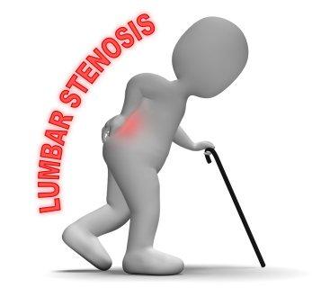 脊柱 管 狭窄 症 運動 禁忌